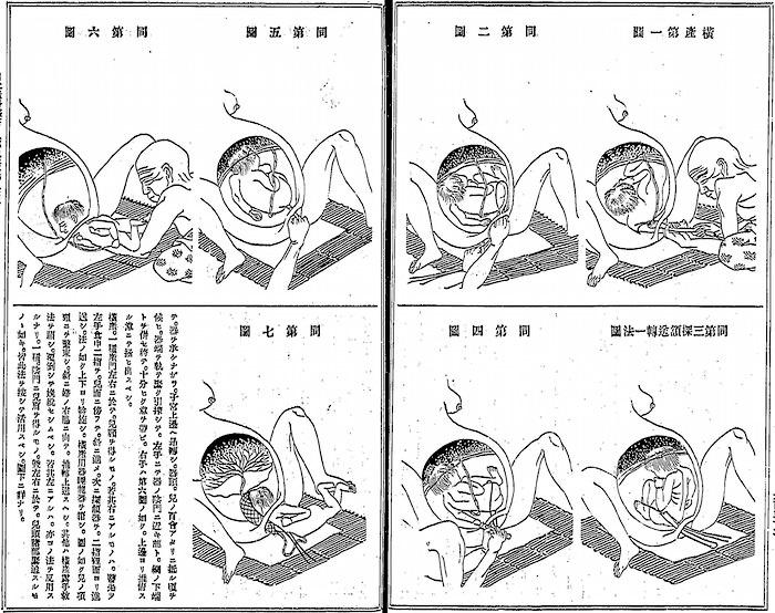 探頷術(水原三折 考案)
